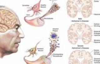 Alzheimer Hastalığı: Nedenleri, belirtileri, tanısı...