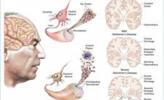 Alzheimer Hastalığı: Nedenleri, belirtileri, tanısı ve tedavisi