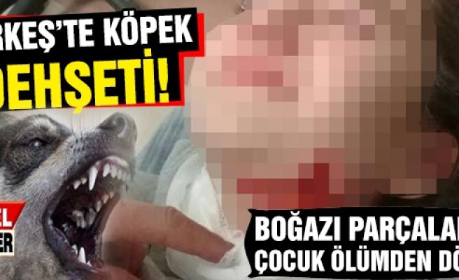 Çerkeş'te boğazı  parçalanan çocuk ölümden döndü