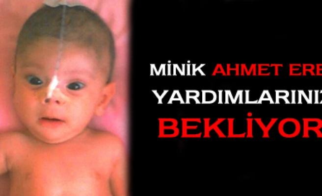 Minik Ahmet Eren yardımlarınızı bekliyor